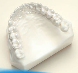 Bacs de fournitures dentaires Blanchiment translucide
