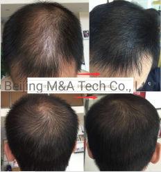 Macchina dei capelli della macchina di bellezza di ricrescita dei capelli del laser