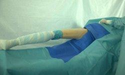 Колено Arthroscopy Pack одноразовые медицинские перекиньте