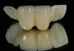 Todo el puente de Maryland de cerámica dental de porcelana con alas de Shenzhen Minghao Laboratorio dental