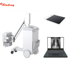 L'équipement médical de l'hôpital mobile de radiographie à rayons X à haute fréquence numérique portable Mobile appareils à rayons X