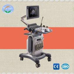 Scanner mobile caldo di ultrasuono di Doppler di colore del carrello del video paziente di vendita