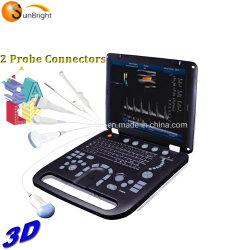 3D/4D 컬러 도플러 경량 초음파 장비 혈관 초음파 진단