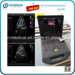 Portátil de ultrasonido en medicina Dopler Color de la imagen 4D