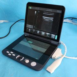 أحدث بيع أجهزة الكمبيوتر المحمولة فوق الصوتية لإنسان في الصين مع أقل سعر، Mslpu44