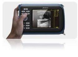 Handheld-Ultraschallscanner, leichtes Gewicht und klare Bildqualität
