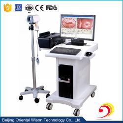 Portable simple d'utilisation de l'endoscope Colposcope numérique de type électronique