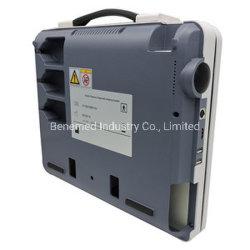 Ordinateur portable de type Ultraslim noir et blanc de l'équipement de diagnostic du scanner à ultrasons