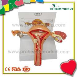 Patológica femenina de plástico en 3D útero ovario modelo anatómico