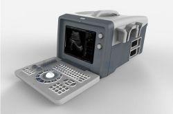 Sistema de Diagnóstico por Ultrasonidos baratos Ecógrafo Digital completa xf218