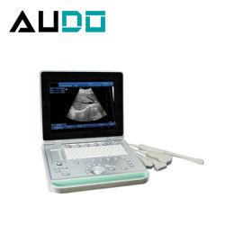 의료 기기 진단 수의사 초음파 휴대용 퍼스널 컴퓨터 수의 초음파 스캐너
