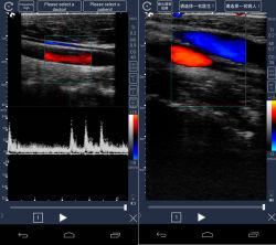 Ecrã táctil convexo Doppler/Sonda Linear scanner de ultra-som