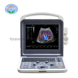 Yj-U60плюс медицинское оборудование 3D 4D ультразвуковой цветовой доплер