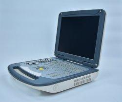 Machine van de Weergave van de Diagnose van Doppler van de Prijs van de fabriek de Digitale Ultrasone