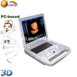 Macchina cardiaca di ultrasuono di Sun-800d Msk di ultrasuono portatile USG del computer portatile 3D