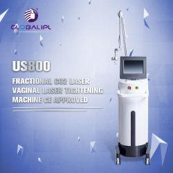 De verwaarloosbare Machine van de Schoonheid van het Gezicht van de Machine van de Laser van Co2 Opheffende met de Goedkeuring van Ce