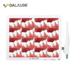 Alta Definição Endoscrope Dentária Câmara Intraoral Integrado