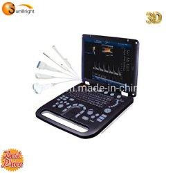 Free Software 3D mejor calidad de los profesionales médicos de diagnóstico por ultrasonido Doppler Color de dispositivo de ultrasonidos