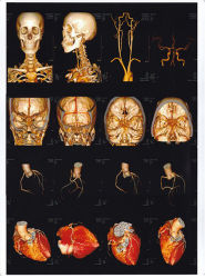 Medical utilisé X-ray Blue film sec pour la reconstruction 3D de l'impression