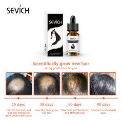 Sevich 모발 관리는 머리 성장에게 자연적인 성분 Argan 본질을 준다