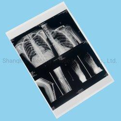 Для струйной печати медицинской рентгеновской пленки