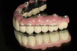 El arco completo de implante dental puente desde China Laboratorio dental