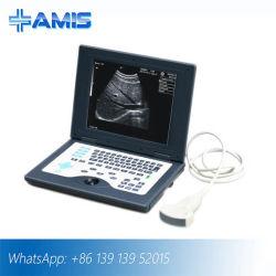 Sistema di formazione immagine di ultrasuono del computer portatile B/W (Am-5800)