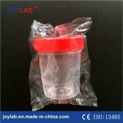 De medische Steriele Container 120ml van het Specimen van de Container van de Urine