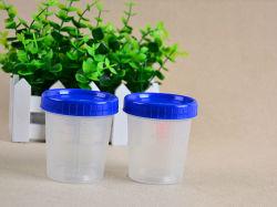 De Containers van het Specimen van de urine PLASSEN de Inzameling van de Steekproef van de Kop