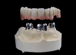 Teleskopkronen Zahngenaue Vorsatzgeräte für Implantat unterstützte Restaurierung