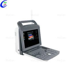 Pleine numérique portable échographie Doppler couleur 4D scanner la machine