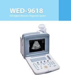 9618 Портативный ультразвуковой сканер с выпуклым и трансвагинальные датчики
