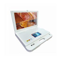 Todo en un endoscopio de cámara HD 1080P y fuente de luz LED y Monitor médico