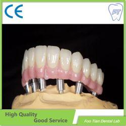 Le plein d'Arche du matériel d'instrument de la céramique dentaire Implant dentaire Blanchiment des dents de pont de la Chine Dental Lab