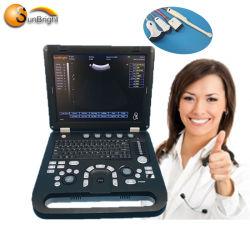 Machine van de Ultrasone klank van de Ultrasone klank USG van de goede Kwaliteit 3D voor de Diagnose van de Buik