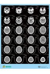 De Película seca médicos médicos/Película/Película térmica/placa de rayos X.