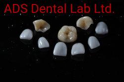 Todos os objectos cerâmicos produto dentária de IPS. E-Max/Inlay Onlay Anúncios Venner Laboratório de medicina dentária