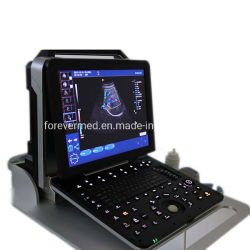 의료 기기 진단 시스템 휴대용 초음파 스캐너