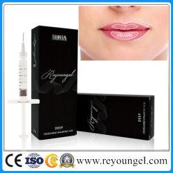 Gel d'acide cutanée Reyoungel hyaluronate de remplissage pour la lèvre plénitude