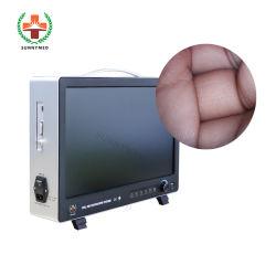 SY-PS050 外科用内視鏡 1/2.8 ソニー CMOS カメラ HD 内視鏡 カメラエンティティ価格