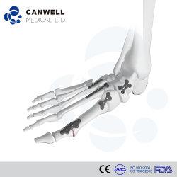Fuss-und Knöchel-Rekonstruktion-Verriegelungsplatten-System, orthopädisches Titanimplantat