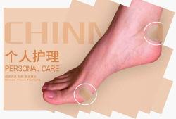 Anti-allergie ventilatie Waterproof Foot Care Hydrocolloid Blister gips