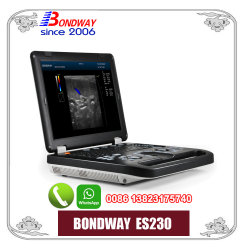 Full Digital Portable Color Doppler Ultrasound System, Sonography, 4D Ultrasonic, 3D Ultrasonic
