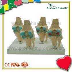 Cuatro etapas humanas enfermas de articulación de rodilla modelo para la Educación Médica