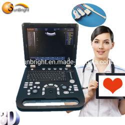 Ultrasuono ultrasonico portatile dell'attrezzatura di misura 3D dell'ospedale