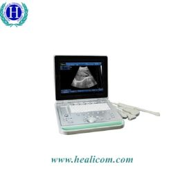 Медицинские дешевые ПК на базе в режиме переносного компьютера Узи для беременных