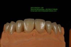 La stampa esatta Emax dentale di Digitahi 3D corona i modelli per ripristino dentale dal laboratorio dentale degli annunci