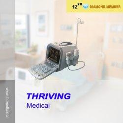 Горячий продаж портативных электронных медицинское оборудование (ПОСЛЕ ПОРОГА-US6602)