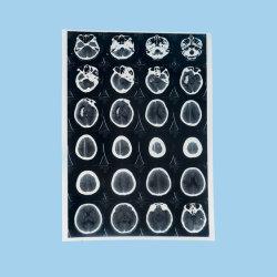 Jet d'encre Pet bleu Medical Cr Film radiographique à rayons X pour Epson / imprimantes Canon