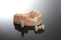De hoogst Gedetailleerde Nauwkeurige Digitale 3D Modellen van de Kronen van de Druk Tand voor Tand
